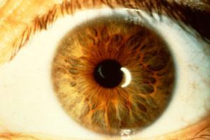 iridology3